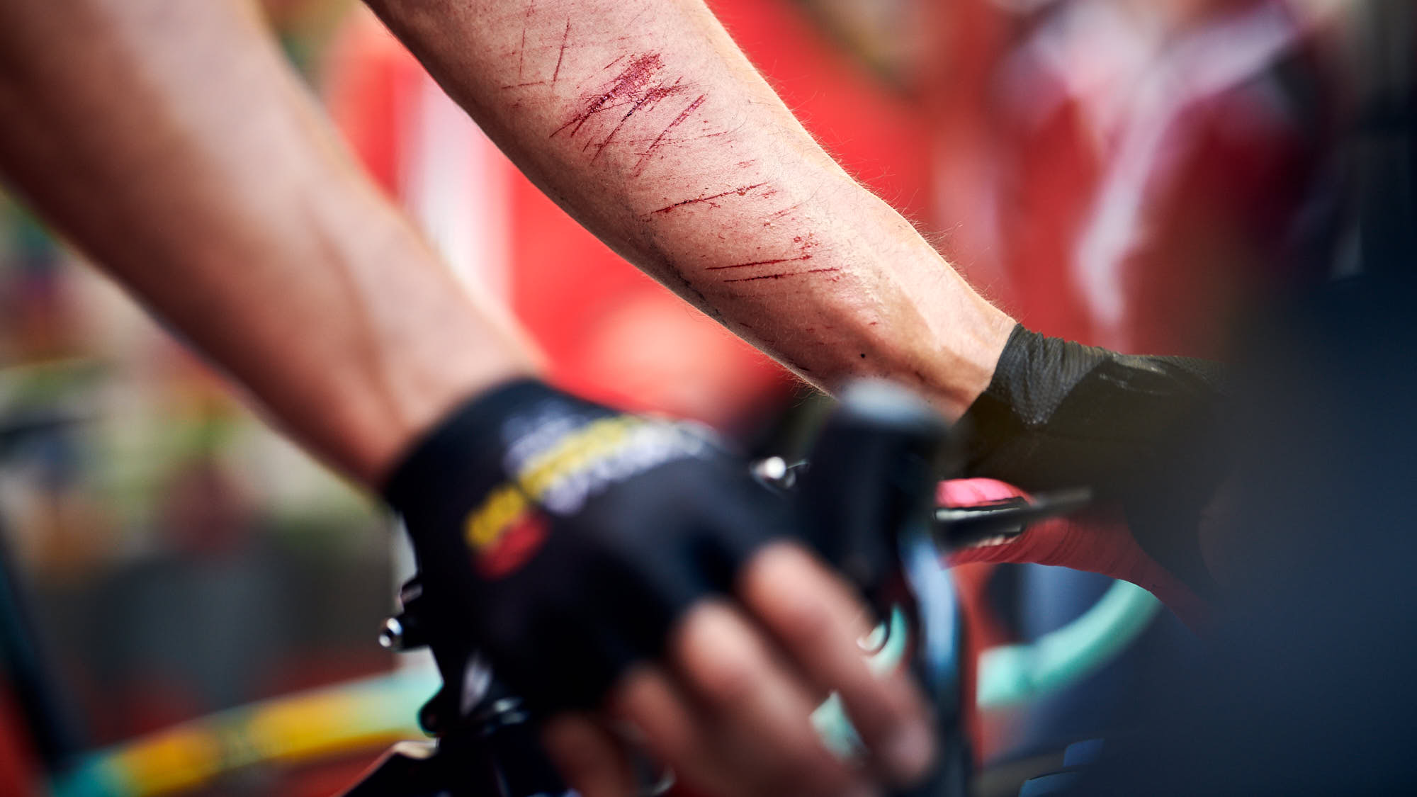 Cuts on the arm of Primoz Roglic after crashing during La Vuelta 2019